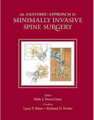 Libraria online eBookshop - Anatomic Approach to Minimally Invasive Spine Surgery, Second Edition -  Mick J. Perez-Cruet MD MSc - CRC Press