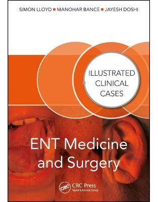 Libraria online eBookshop - ENT Medicine and Surgery: Illustrated Clinical Cases -  Simon Kinglsey Wickham Lloyd, Manohar Bance, Jayesh Doshi  - CRC Press