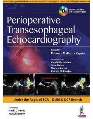 Libraria online eBookshop - Perioperative Transeasophageal Echocardiography -  Poonam Malhotra Kapoor - Jaypee Brothers Medical Publishers
