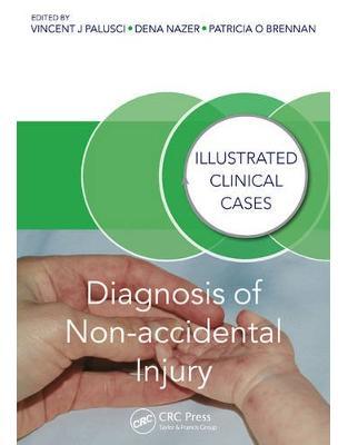 Libraria online eBookshop - Diagnosis of Non-accidental Injury -  Vincent J. Palusci , Dena Nazer , Patricia Brennan - CRC Press