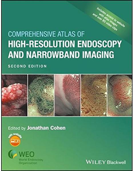 Libraria online eBookshop - Comprehensive Atlas of High Resolution Endoscopy and Narrowband Imaging - Jonathan Cohen  - Wiley