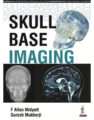 Libraria online eBookshop - Skull Base Imaging -  F. Allan Midyett,‎ Suresh K. Mukherji - Jaypee Brothers Medical Publishers