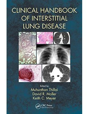 Libraria online eBookshop - Clinical Handbook of Interstitial Lung Disease -  Muhunthan Thillai,‎ David R. Moller,‎ Keith C. Meyer  - CRC Press