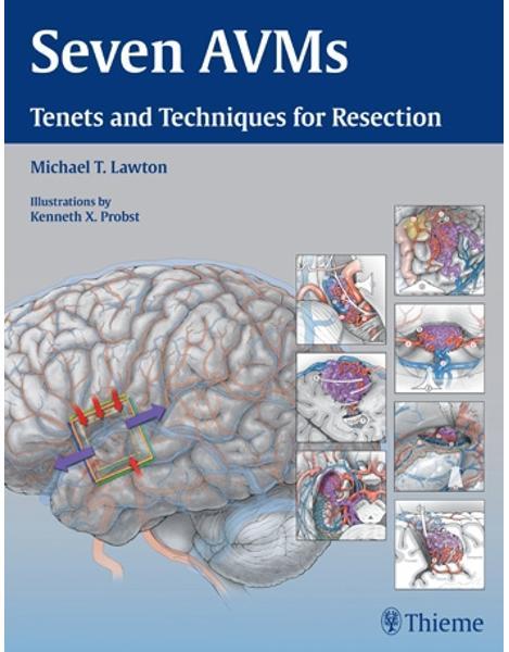 Libraria online eBookshop -  Seven AVMs - Michael Lawton  - Thieme
