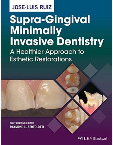 Libraria online eBookshop - Supra-Gingival Minimally Invasive Dentistry: A Healthier Approach to Esthetic Restorations - Jose-Luis Ruiz - Wiley