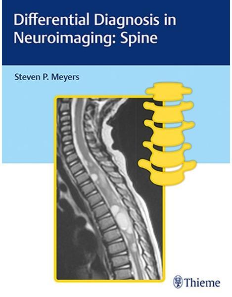 Libraria online eBookshop -  Differential Diagnosis in Neuroimaging - Steven Meyers  - Thieme