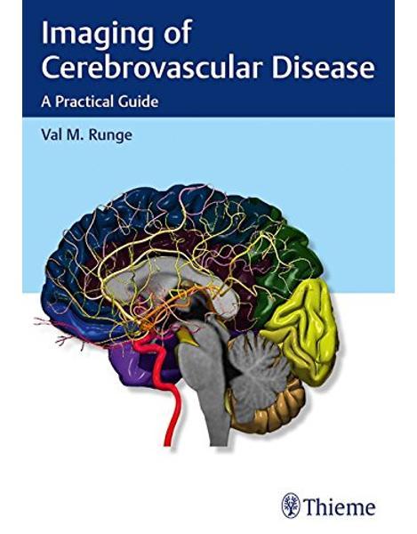 Libraria online eBookshop -  Imaging of Cerebrovascular Disease -  -