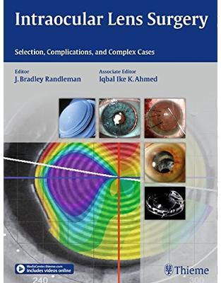 Libraria online eBookshop -  Intraocular Lens Surgery - Bradley Randlema, Iqbal Ike K. Ahmed  - Thieme