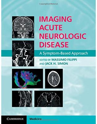 Imaging Acute Neurologic Disease: A Symptom-Based Approach