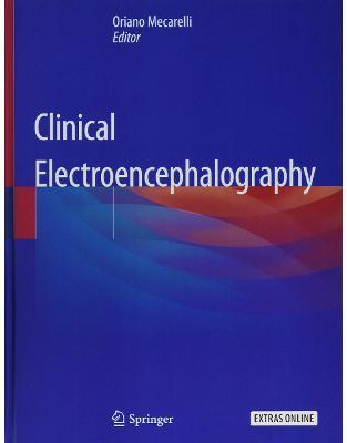 Clinical Electroencephalography