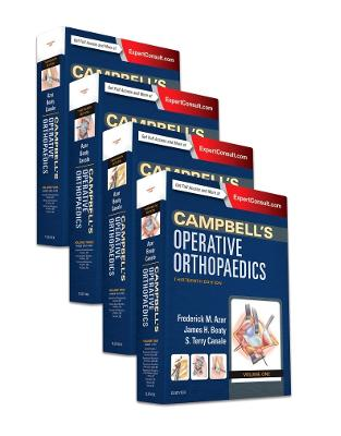 Libraria online eBookshop - Campbell's Operative Orthopaedics, 4-Volume Set, 13th Edition  - Frederick M Azar,  S. Terry Canale,  James H. Beaty - Elsevier
