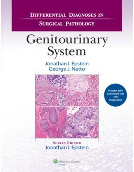Libraria online eBookshop - Differential Diagnoses in Surgical Pathology: Genitourinary System - Jonathan I. Epstein and George J. Netto - LWW