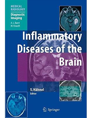 Libraria online eBookshop - Inflammatory Diseases of the Brain - Stefan Hähnel, Michael Knauth  - Springer