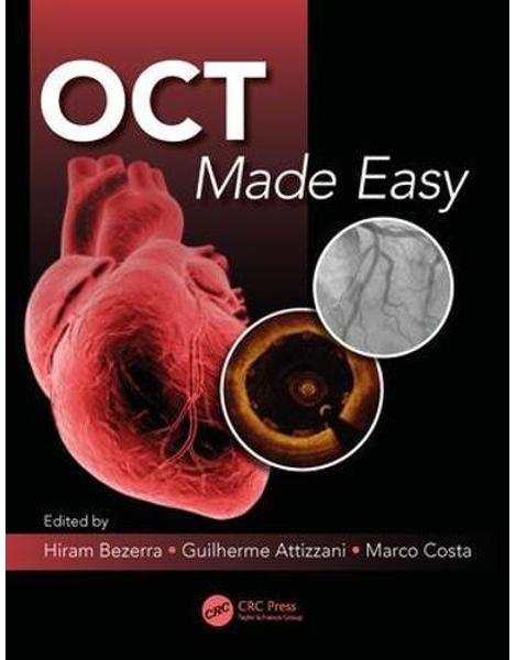 Libraria online eBookshop - OCT Made Easy - Guilherme F. Attizzani, Hiram G. Bezerra, Marco A. Costa - CRC press