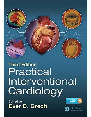 Libraria online eBookshop - Practical Interventional Cardiology: Third Edition - Ever D. Grech - CRC press