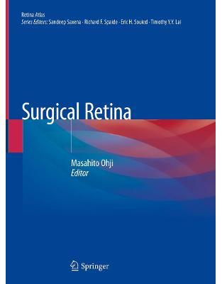 Surgical Retina (Retina Atlas)