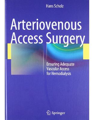 Libraria online eBookshop - Arteriovenous Access Surgery: Ensuring Adequate Vascular Access for Hemodialysis  -  Hans Scholz  - Springer