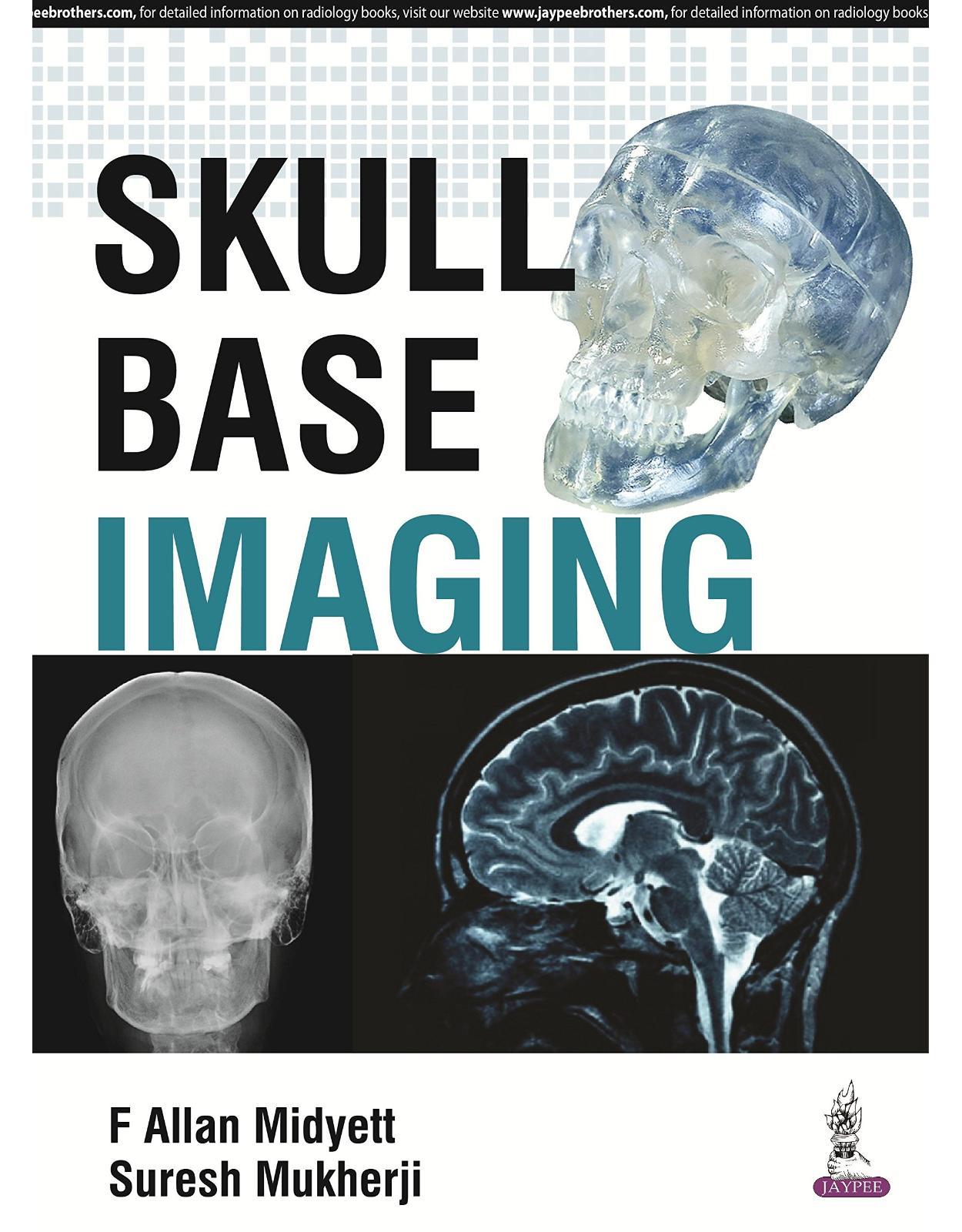 Skull Base Imaging