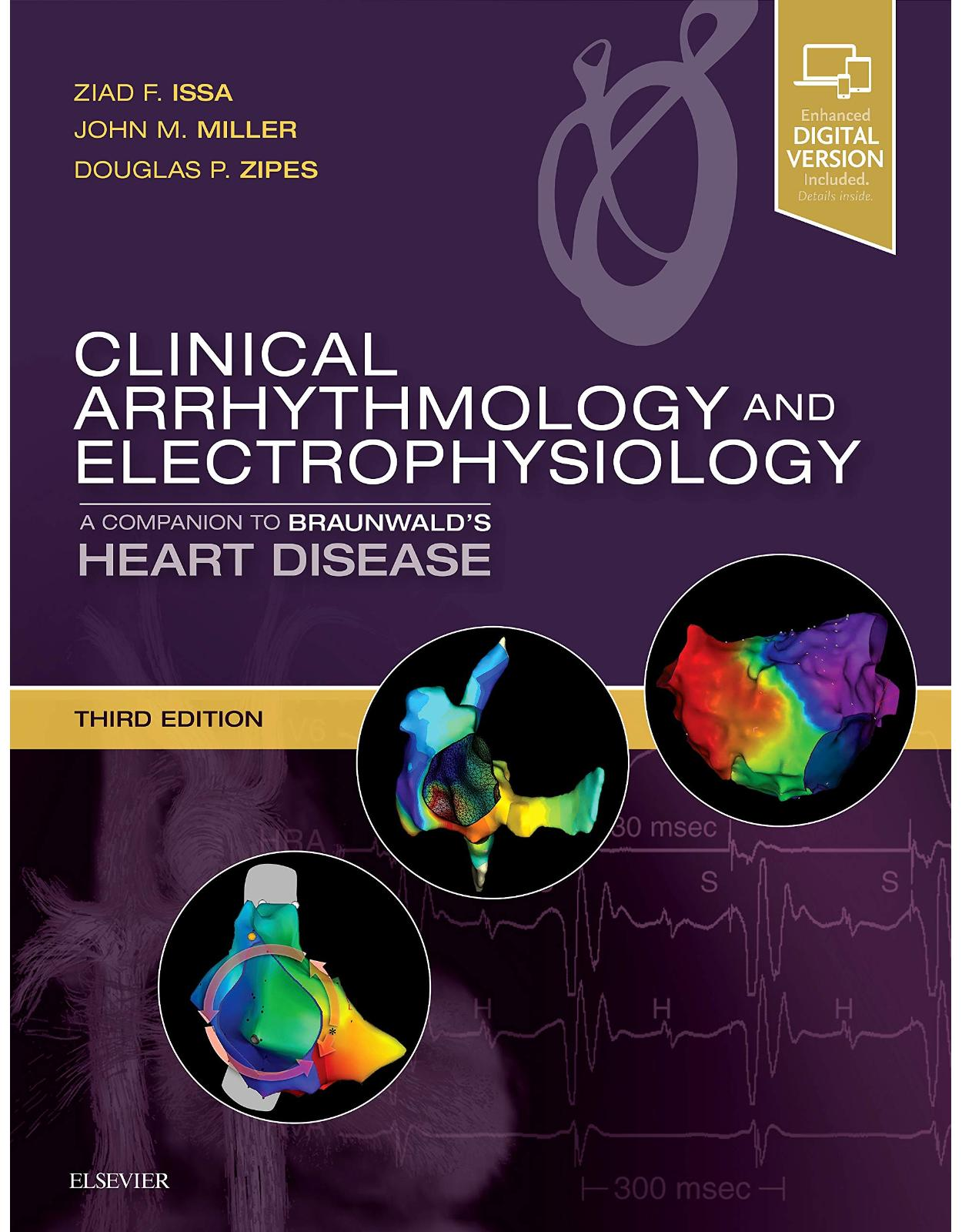 Clinical Arrhythmology and Electrophysiology: A Companion to Braunwald's Heart Disease, 3e
