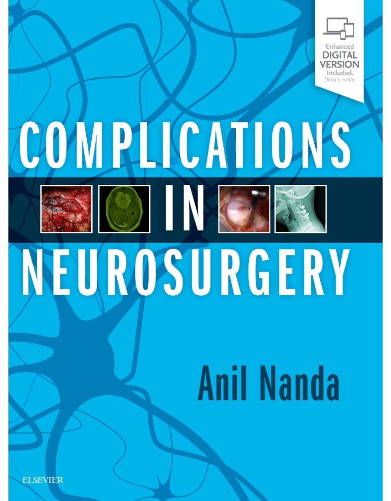 Complications in Neurosurgery, 1e�