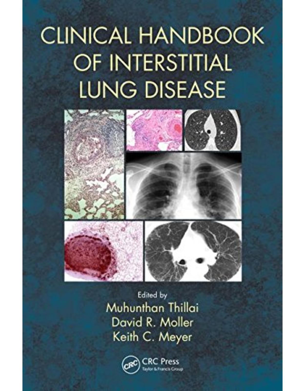 Clinical Handbook of Interstitial Lung Disease