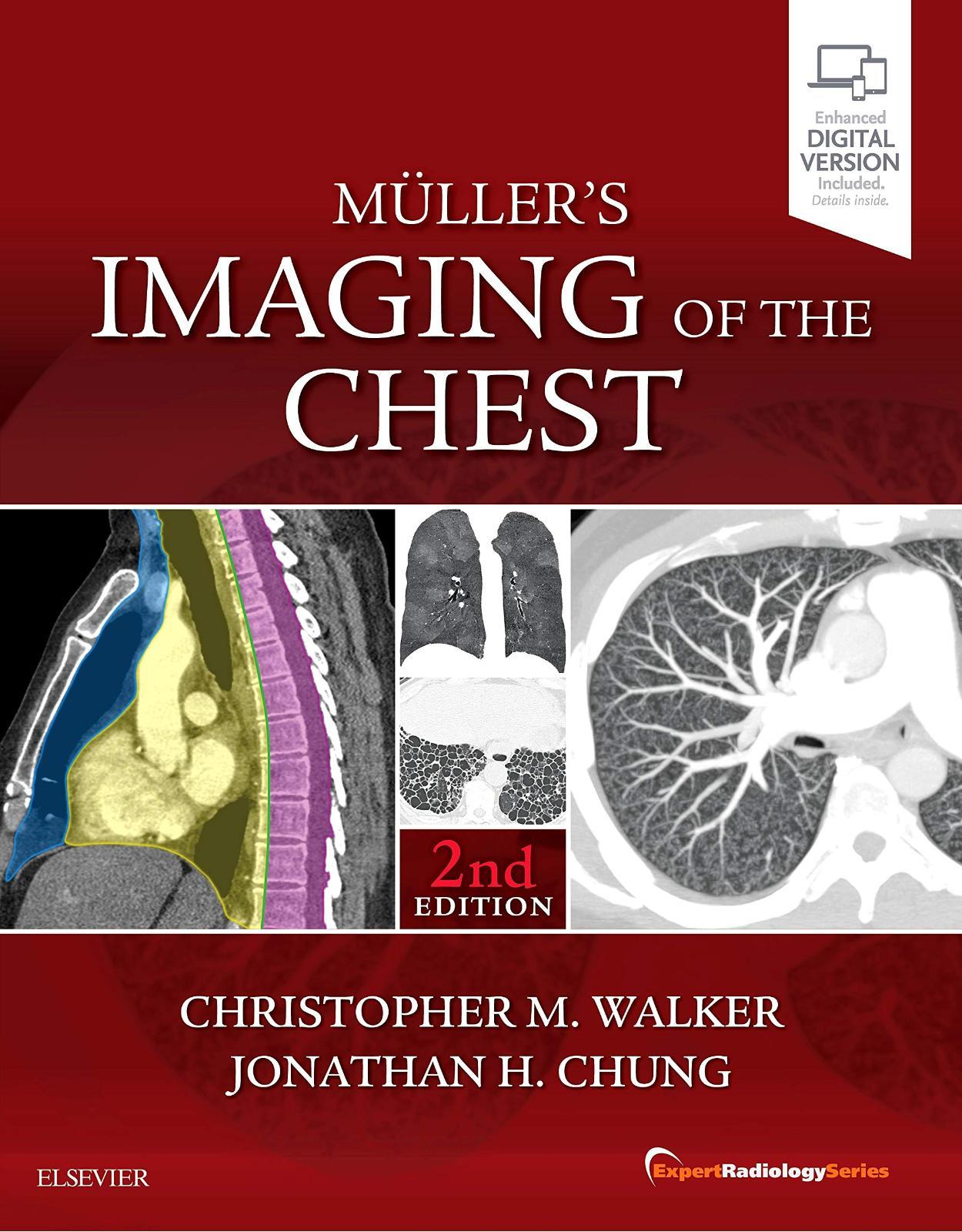 Muller's Imaging of the Chest: Expert Radiology Series, 2e