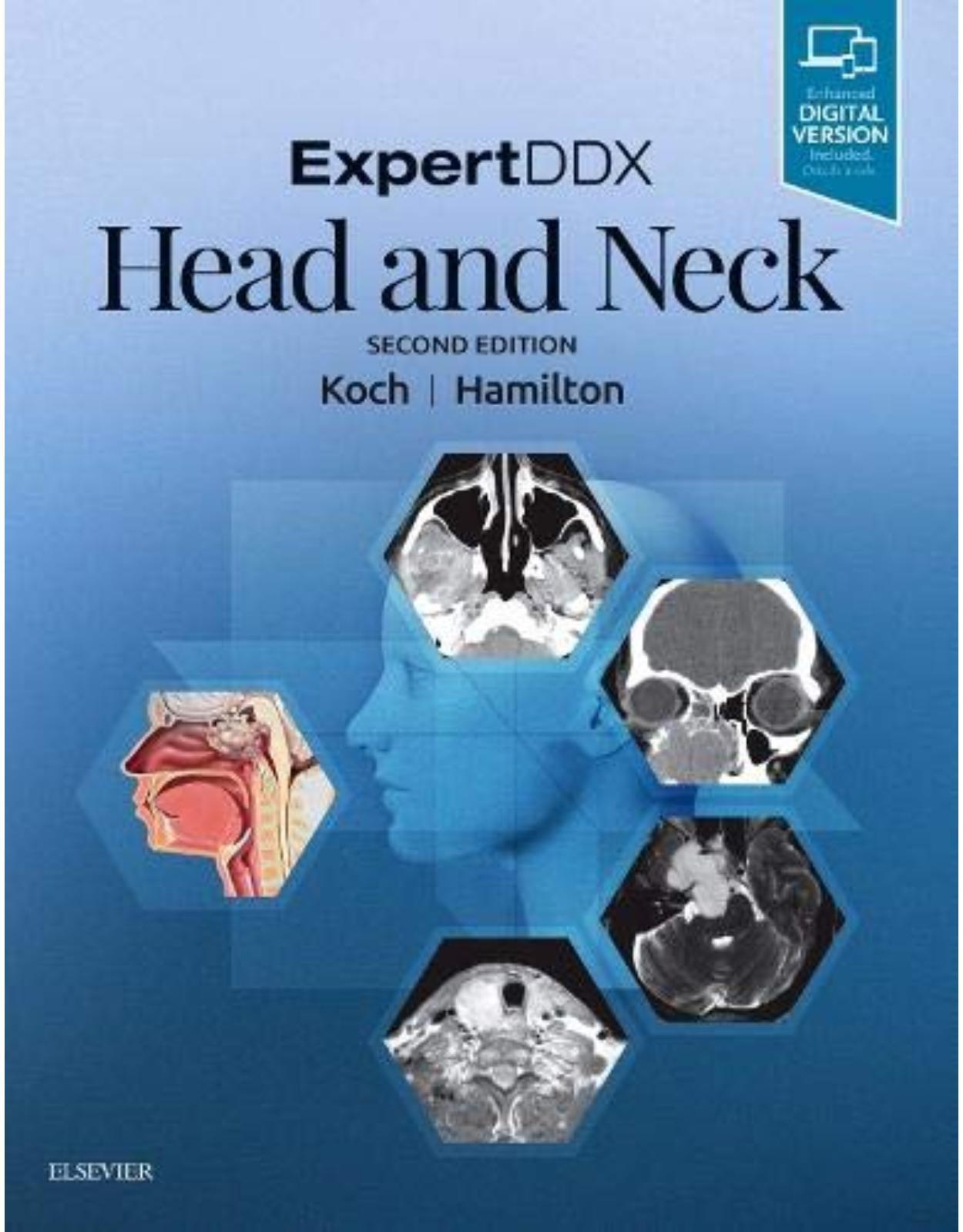 ExpertDDX: Head and Neck, 2e