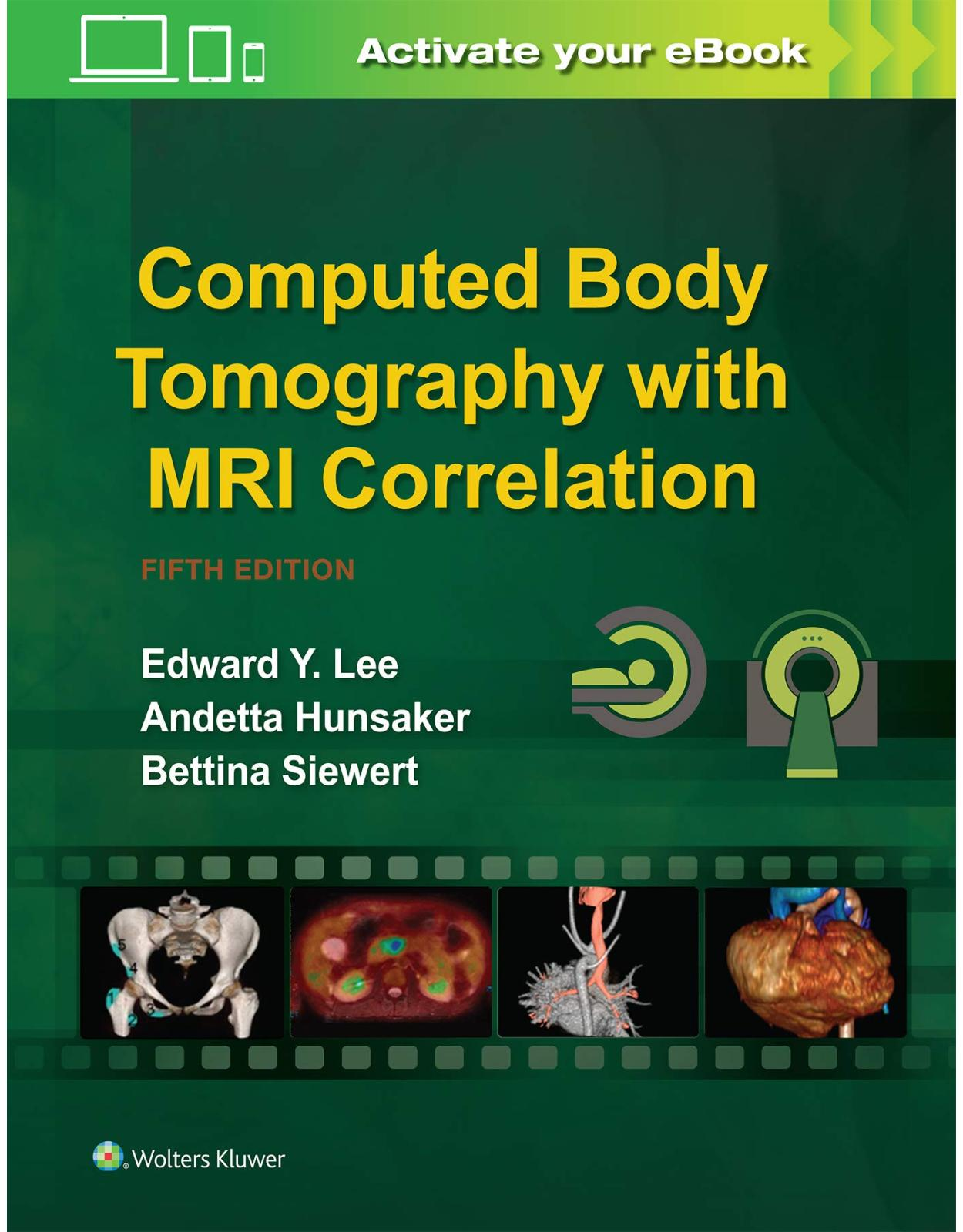 Computed Body Tomography with MRI Correlation. Fifth edition