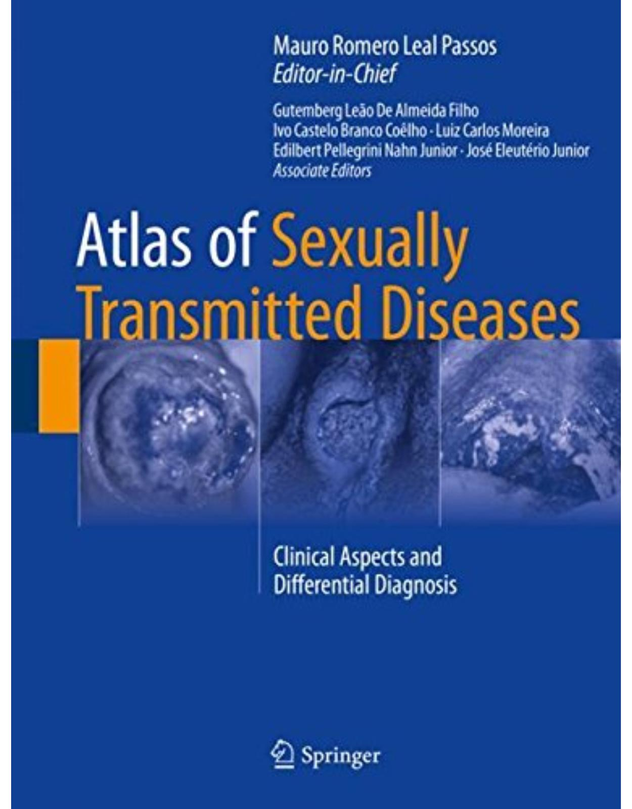 Atlas of Sexually Transmitted Diseases: Clinical Aspects and Differential Diagnosis