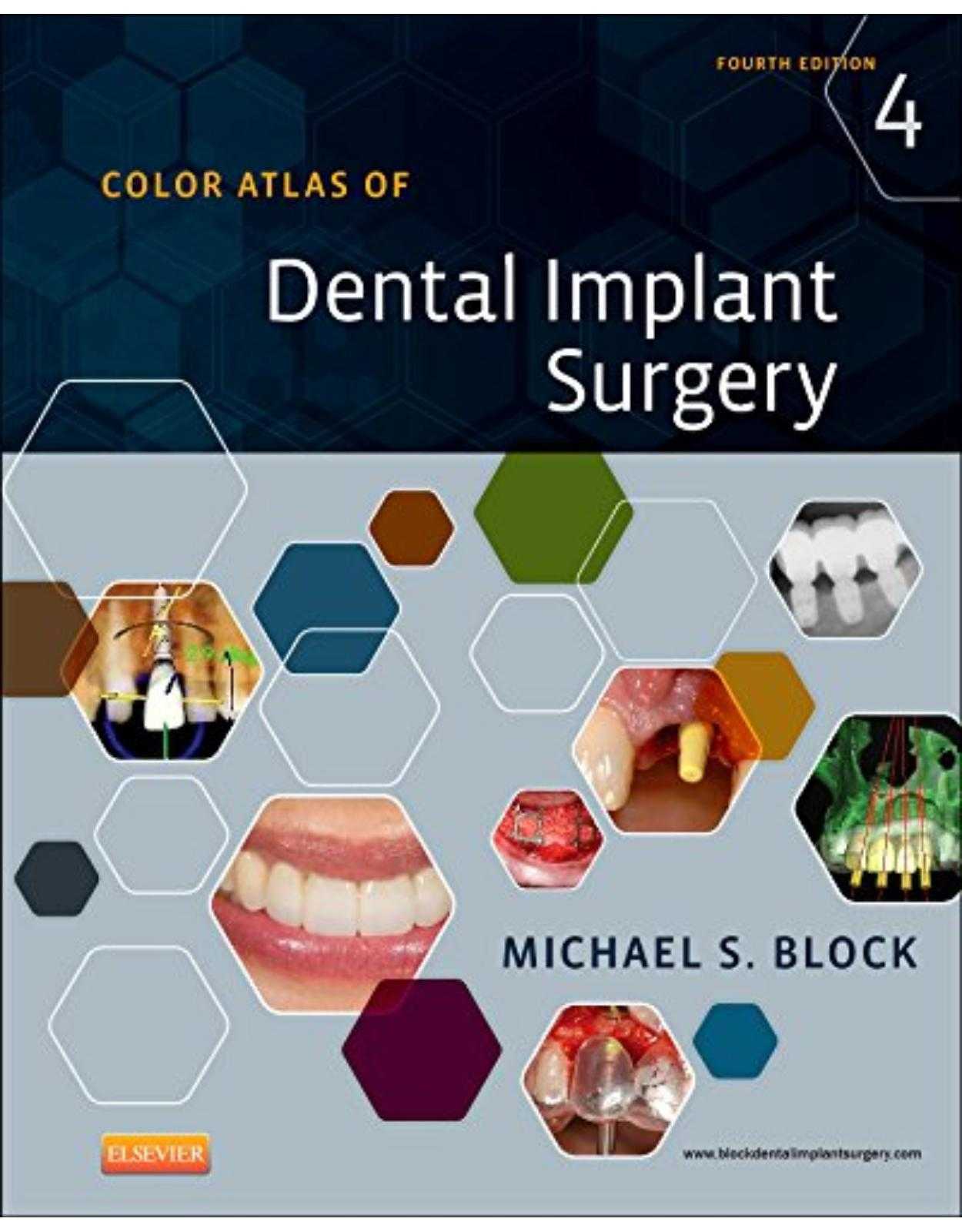 Color Atlas of Dental Implant Surgery, 4e