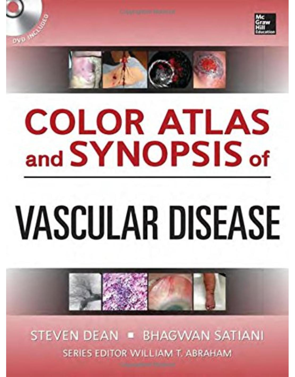 Color Atlas And Synopsis Of Vascular Medicine