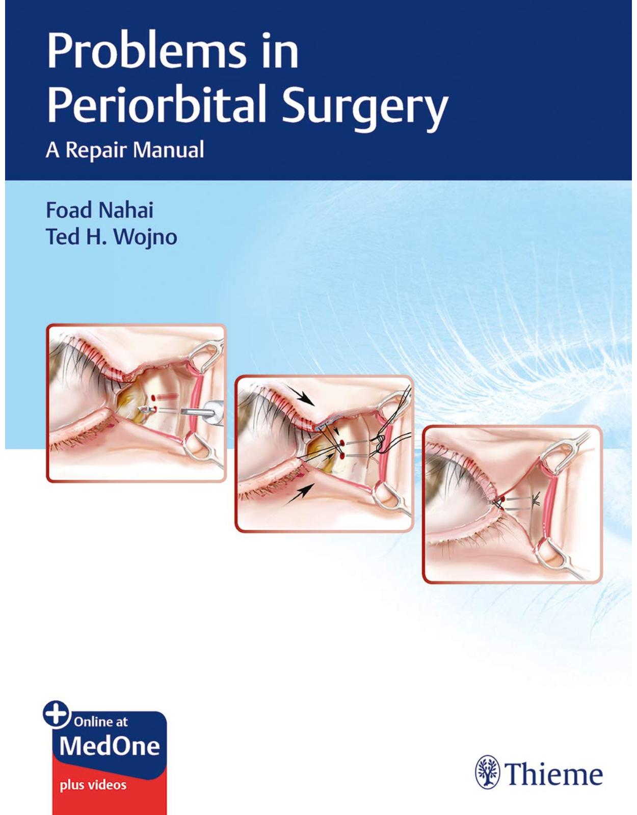 Problems in Periorbital Surgery: A Repair Manual