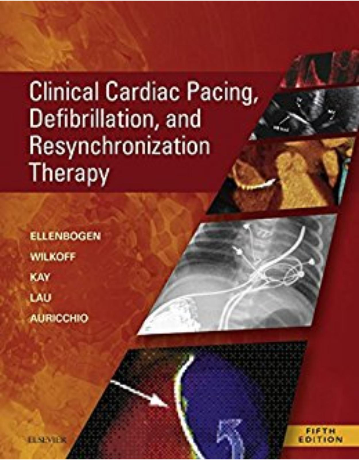 Clinical Cardiac Pacing, Defibrillation and Resynchronization Therapy, 5th Edition