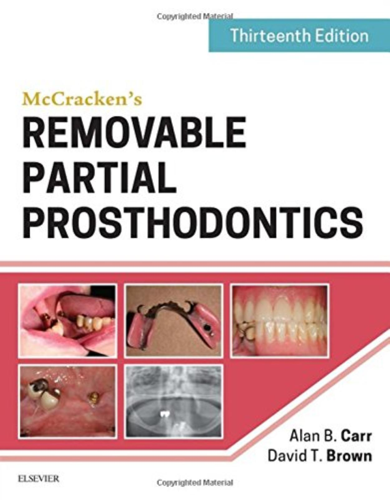 McCrackens Removable Partial Prosthodontics , 13th Edition