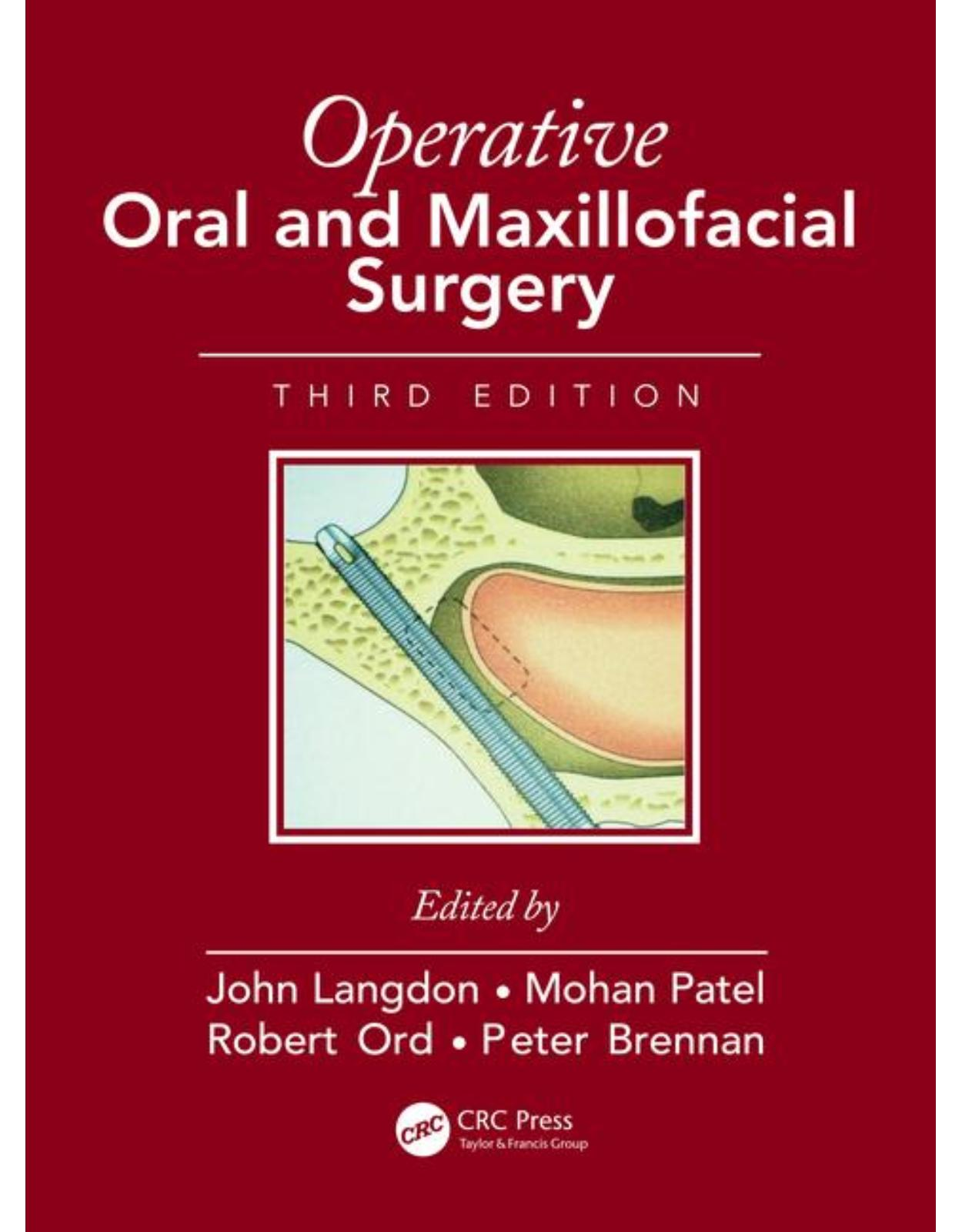 Operative Oral and Maxillofacial Surgery, Third Edition