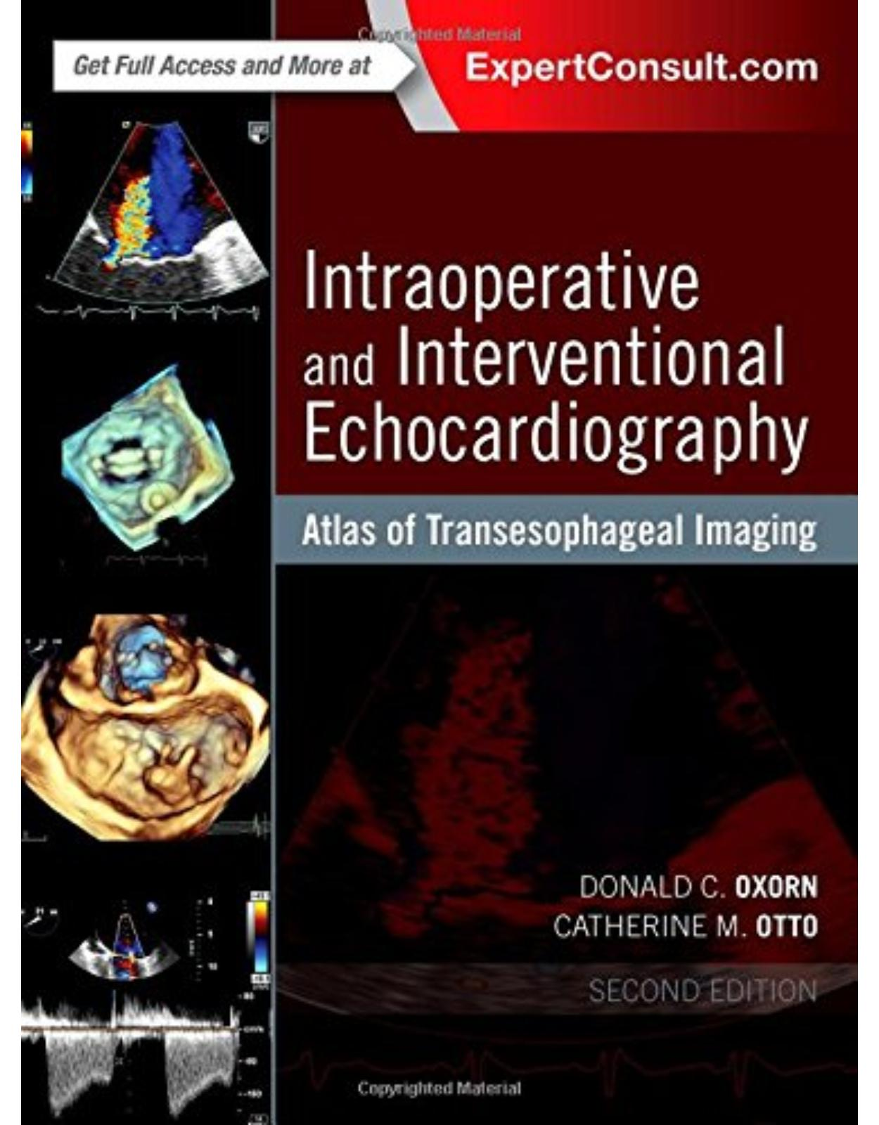 Intraoperative and Interventional Echocardiography: Atlas of Transesophageal Imaging, 2e