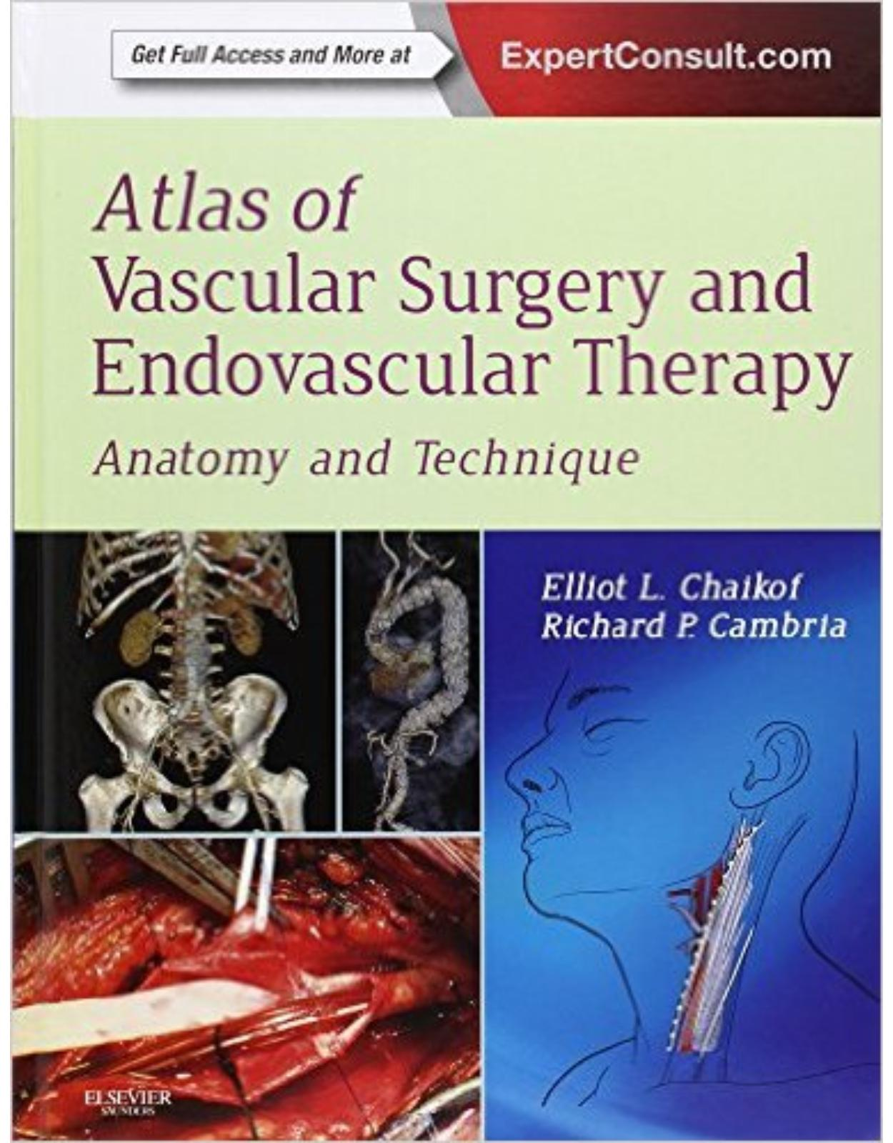 Atlas of Vascular Surgery and Endovascular Therapy: Anatomy and Technique