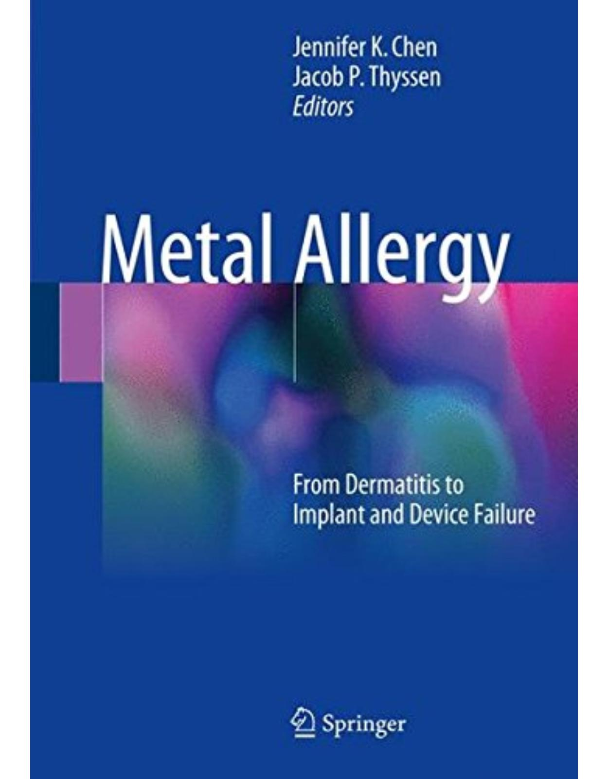 Metal Allergy: From Dermatitis to Implant and Device Failure