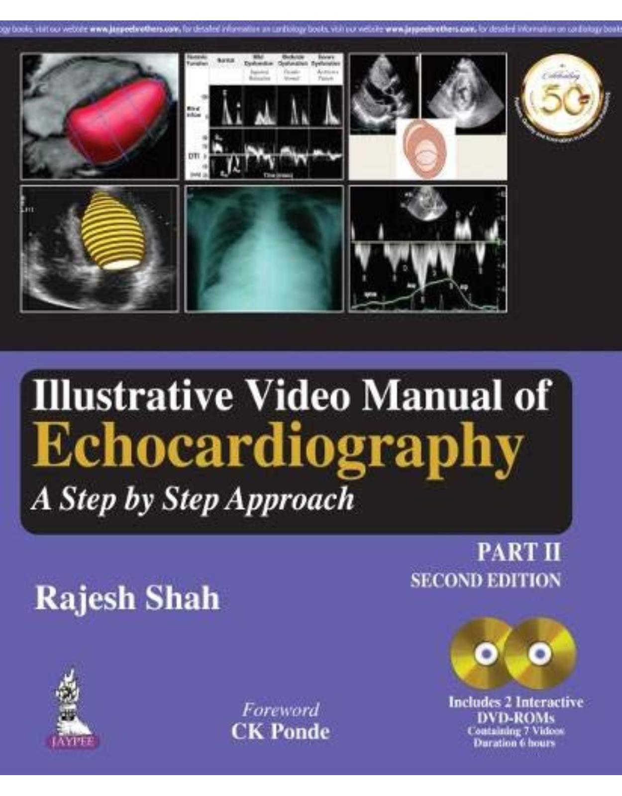 Illustrative Video Manual of Echocardiography: A Step by Step Approach - Part 2